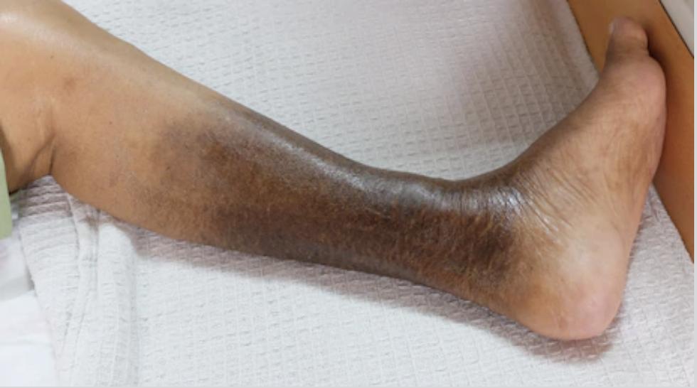 Mancha na perna