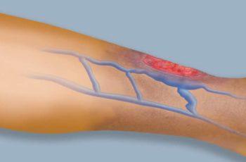 Úlcera Venosa: o que é, causas e tratamento?